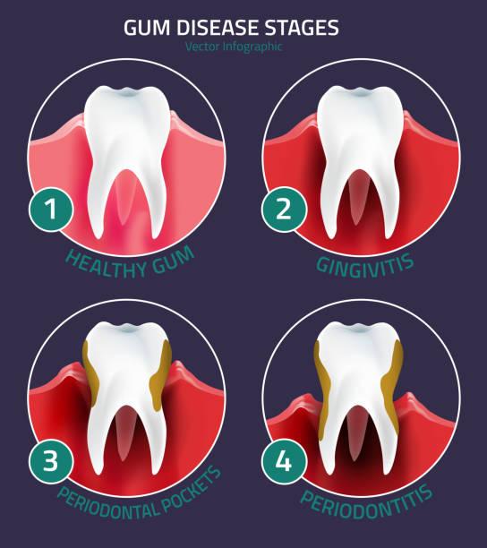 stockillustraties, clipart, cartoons en iconen met teeth vector infographic - dentine