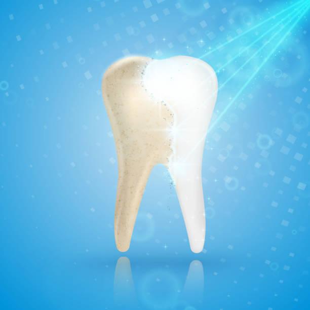 bildbanksillustrationer, clip art samt tecknat material och ikoner med tandblekning 3d koncept. jämförelse av ren och smutsig tand före och efter blekning behandling. - tandblekning