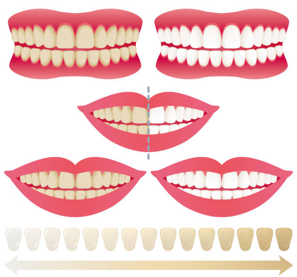 illustrazioni stock, clip art, cartoni animati e icone di tendenza di teeth whitening. - denti