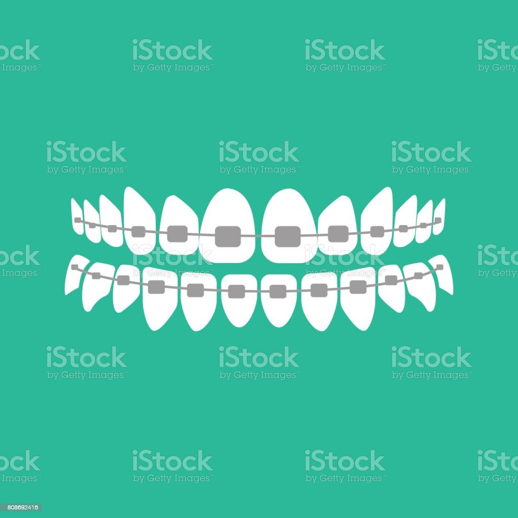 Teeth with braces on the green background. Vector illustration vector art illustration