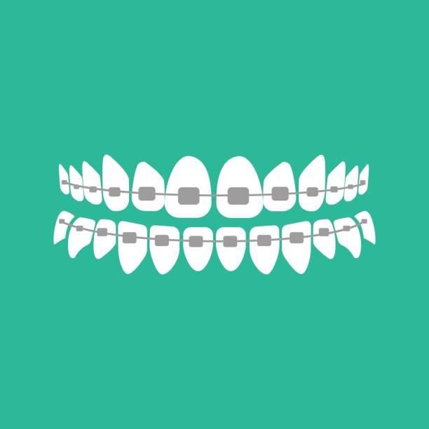 zähne mit zahnspangen auf grünem hintergrund. vektor-illustration - manschetten stock-grafiken, -clipart, -cartoons und -symbole