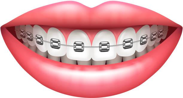 zähne mit zahnspangen frau lächeln isoliert auf weißem vektor - manschetten stock-grafiken, -clipart, -cartoons und -symbole