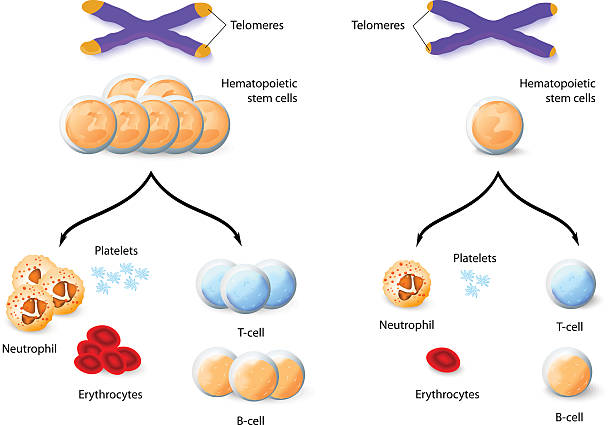 Telomere and Aplastic anemia Telomere and Oncology. Aplastic anemia bone marrow tissue stock illustrations