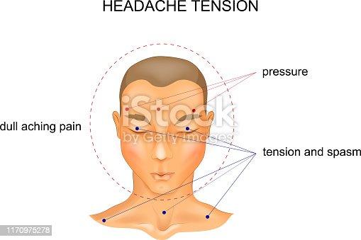 vector illustration of tension headache symptoms.