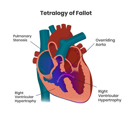 Tetralogy of Fallot composition of the heart defects. Vector illustration of the congenital heart anomaly