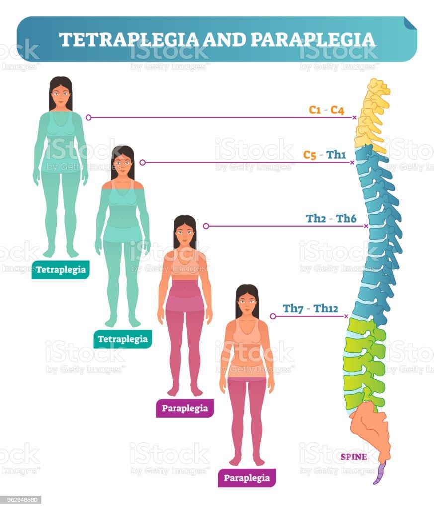 Ilustración de Tetraplejia Y Paraplejia Espinal Trastorno Neural ...