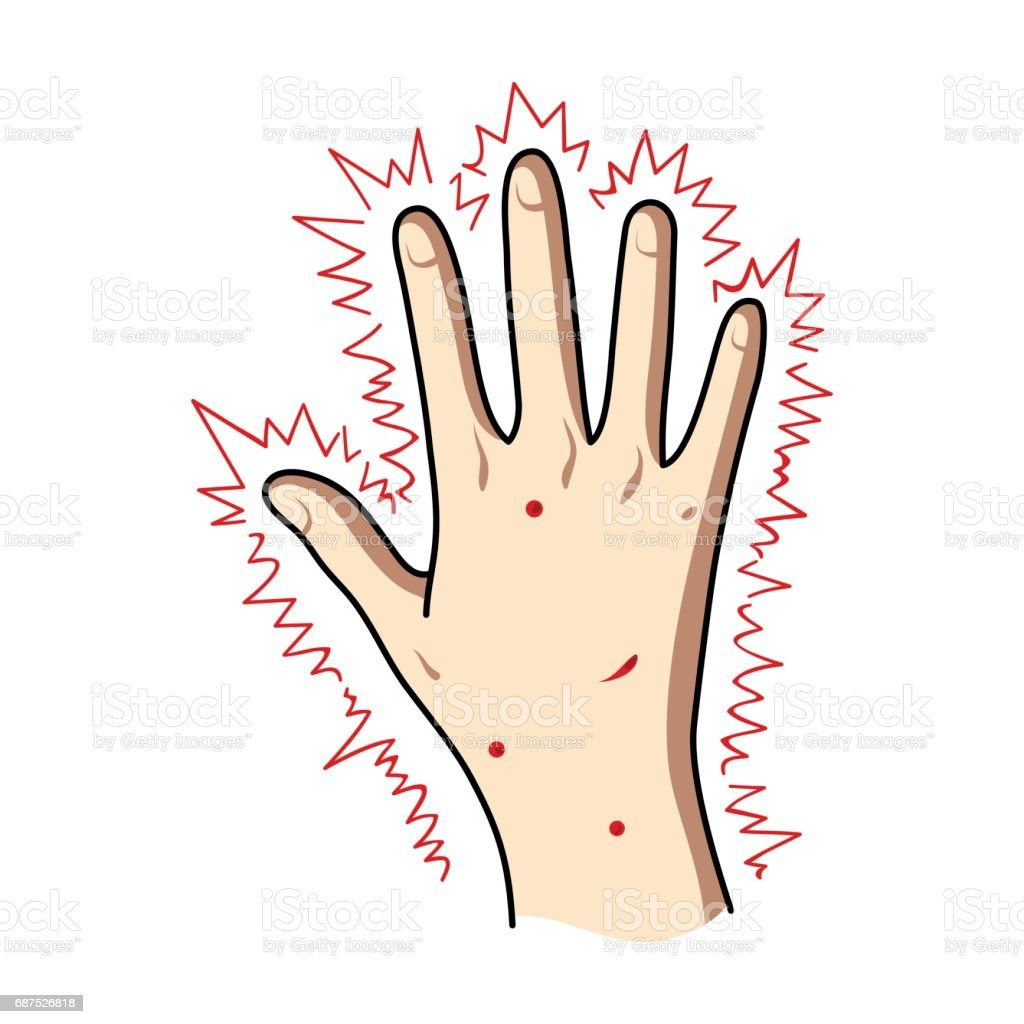 The arm of the patient with diabetes.Hand with eczema from diabetes.Diabetes single icon in cartoon style vector symbol stock illustration. vector art illustration