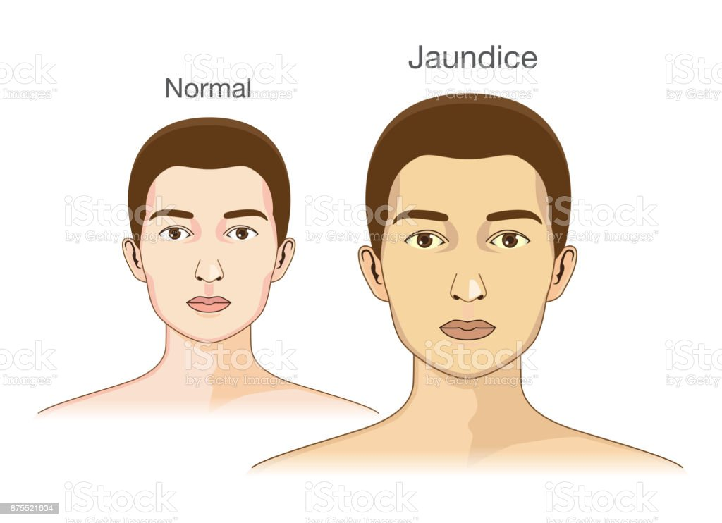 The Comparison between normal skin people and yellowing from Jaundice. vector art illustration