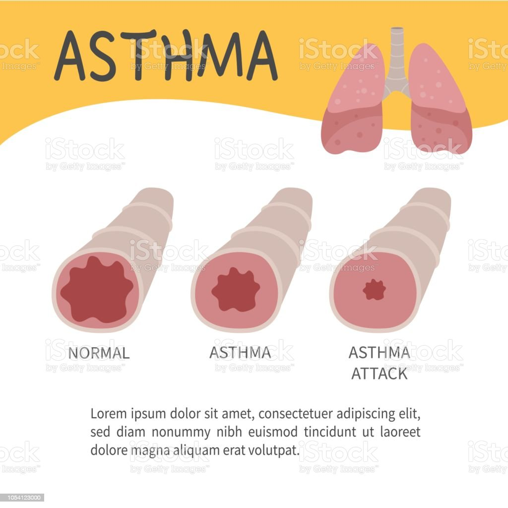 The concept of an attack of asthma. vector art illustration