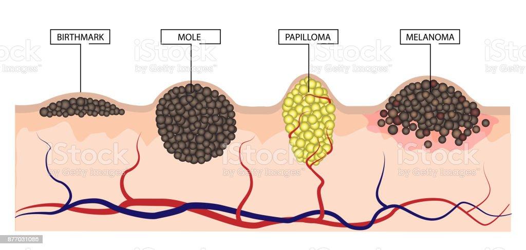 most common site of laryngeal papillomatosis