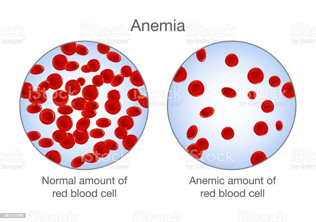 The Difference Of Anemia Amount Of Red Blood Cell And Normal Stock