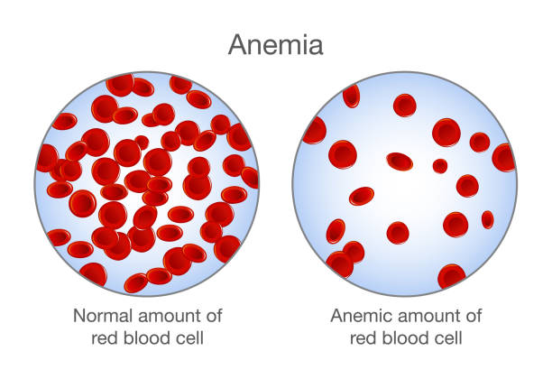 The difference of Anemia amount of red blood cell and normal. The difference of Anemia amount of red blood cell and normal. Illustration about medical. anemia stock illustrations