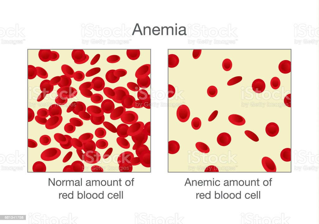 The Difference Of Normal Amount Of Red Blood Cell And Anemia Stock