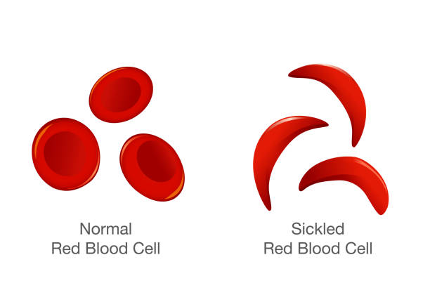 The difference of Normal red blood cell and sickle cell. The difference of Normal red blood cell and sickle cell. Illustration about medical. red blood cell stock illustrations