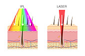 The difference of using IPL light and laser in hair removal.