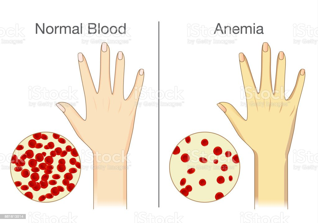 The effect of Anemia on skin blood flow in human. vector art illustration