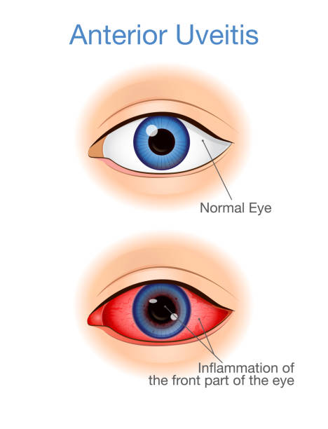 The eye have symptoms of anterior uveitis and Normal. vector art illustration