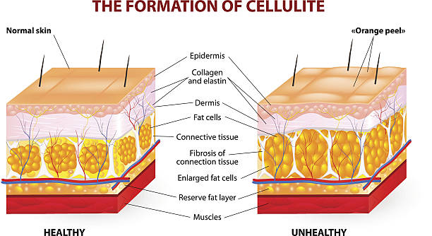 The formation of cellulite. Vector diagram The formation of cellulite.  Cellulite occurs in most females and rarely in males. Vector diagram. adipose tissue stock illustrations
