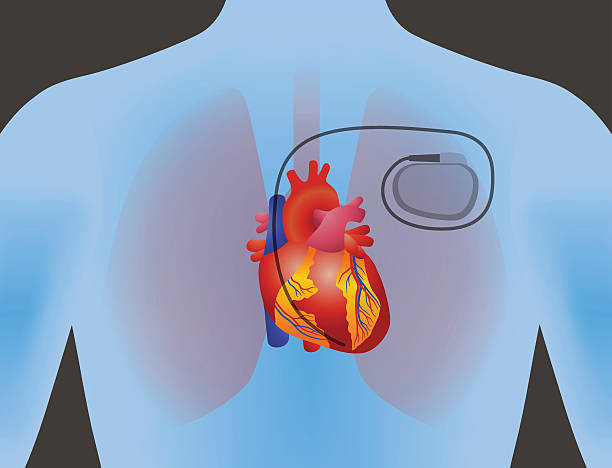 the heart of human and artificial cardiac pacemaker the heart of human and artificial cardiac pacemaker, vector illustration pacemaker stock illustrations