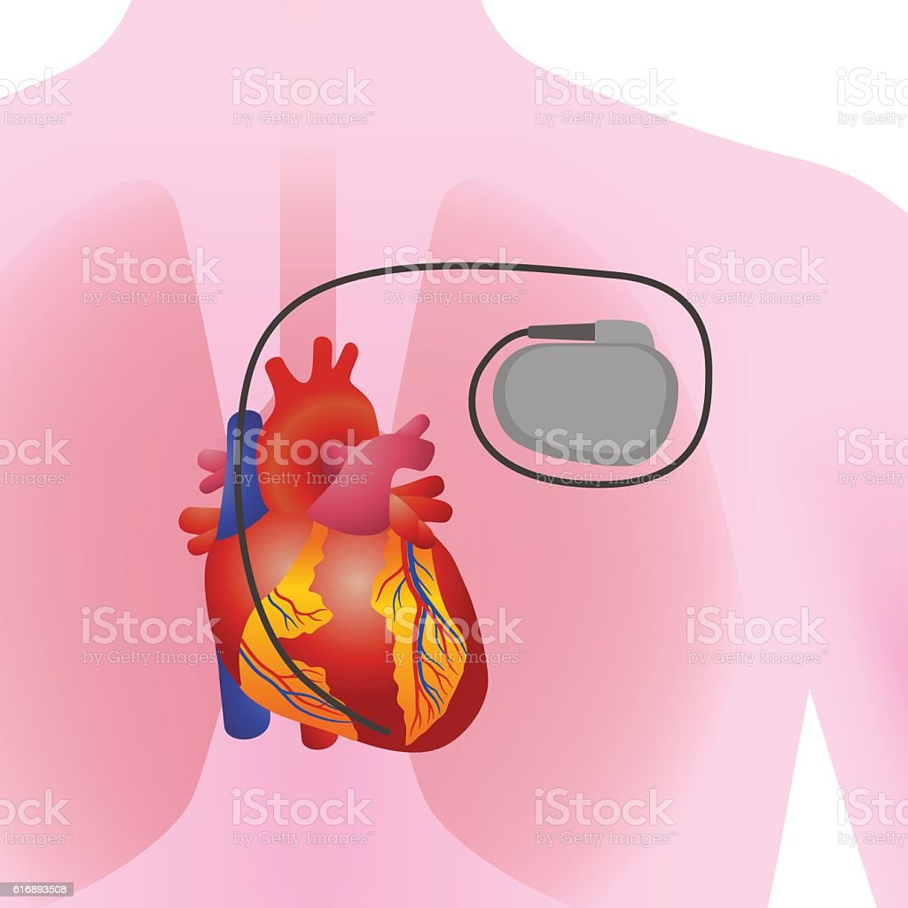 The Heart Of Human And Artificial Cardiac Pacemaker Stock Vektor Art