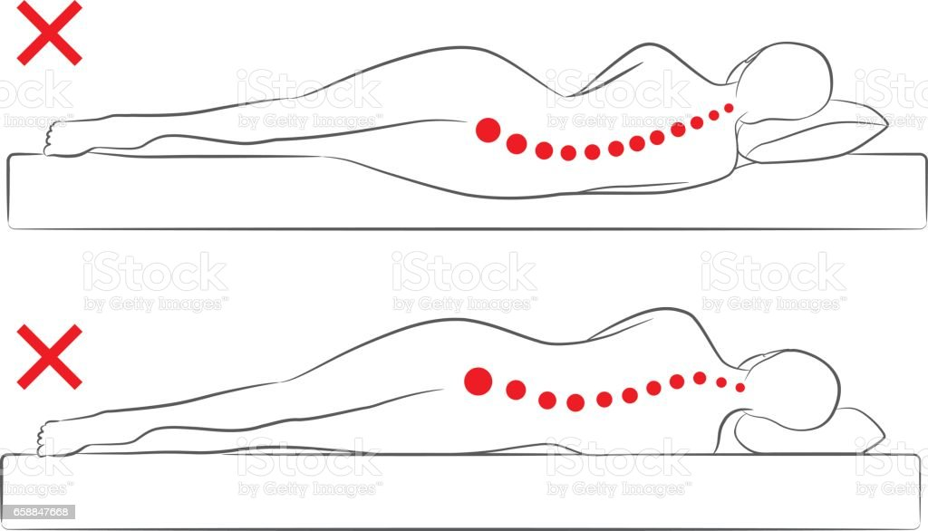 The incorrect spine alignment when sleeping. vector art illustration