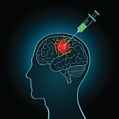 The injection syringe to the brain, the concept of direct treatment of brain tumors and other diseases