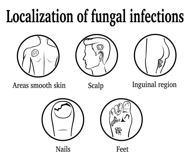 The localization of fungal infections vector art illustration