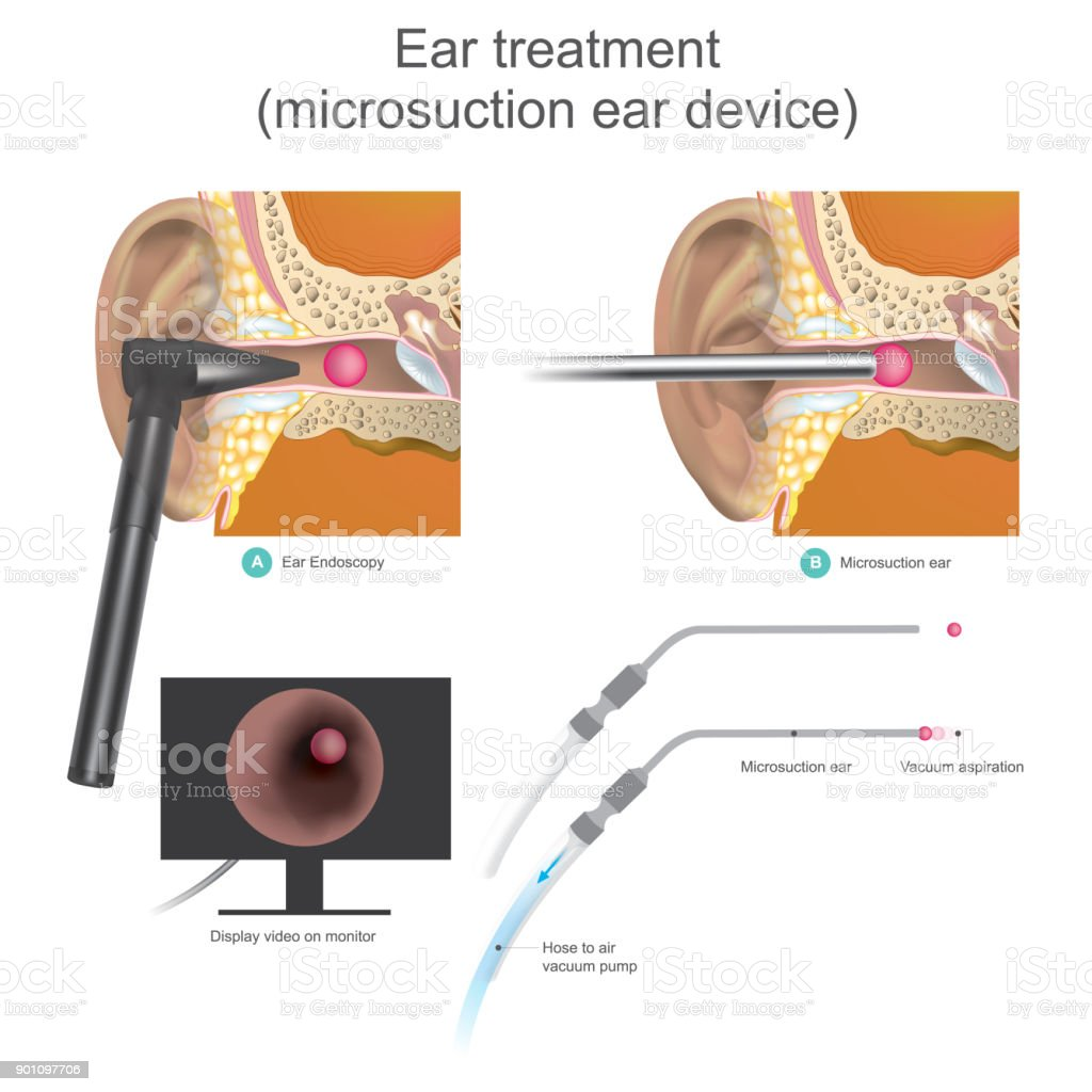 The Micro Suction Ear Device It Is Vacuum Working System Doctors Use ...