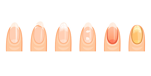 the nails healthy and the sick