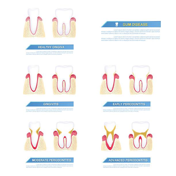 bildbanksillustrationer, clip art samt tecknat material och ikoner med the progress of periodontal disease, gum disease - tandsten
