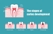 The stages of  caries development, vector illustration