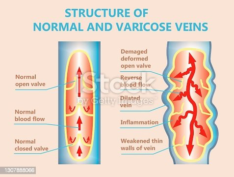 istock The varicose veins and normal veins 1307888066