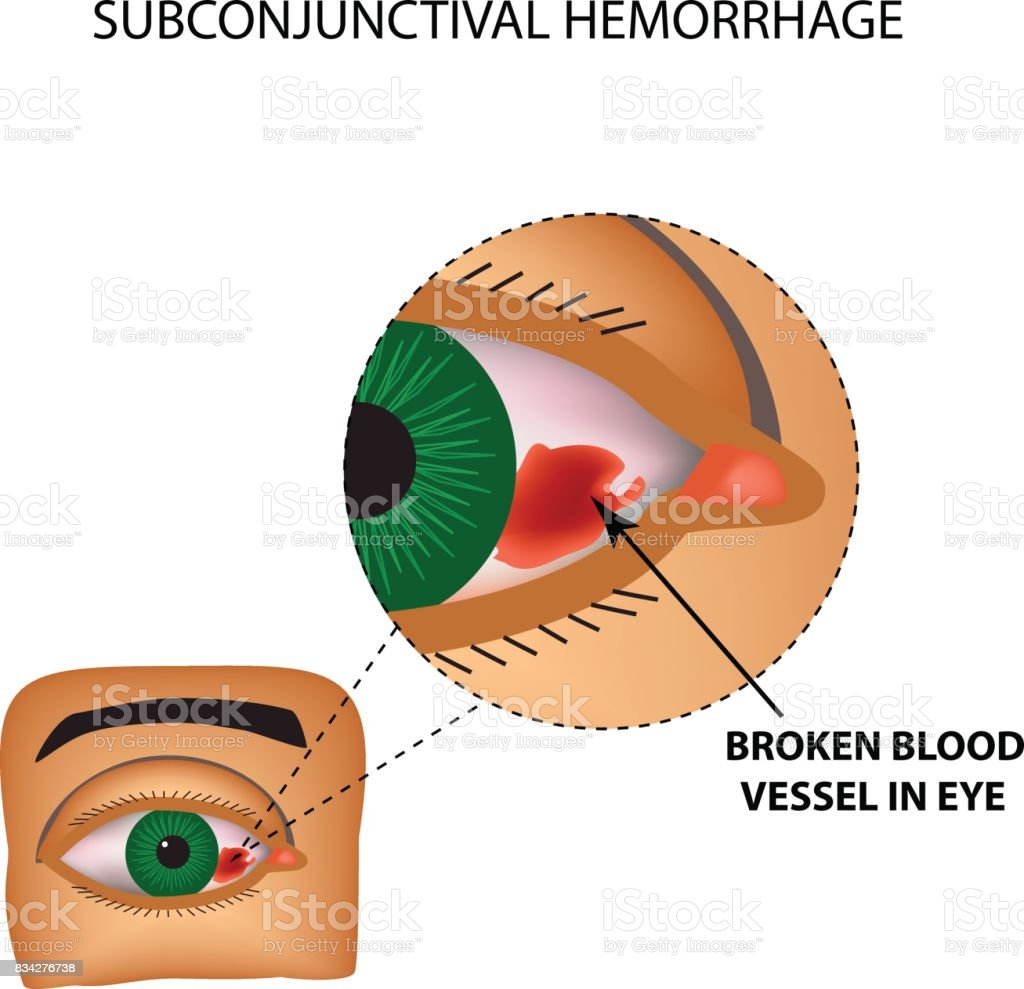The vessel in the eye burst. Inflammation and redness. The structure of the eye. Infographics. Vector illustration on isolated background vector art illustration