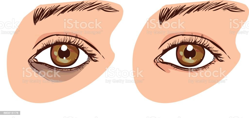 The woman's face with dark circles under the eyes. The concept of care for eye skin. before and after vector art illustration
