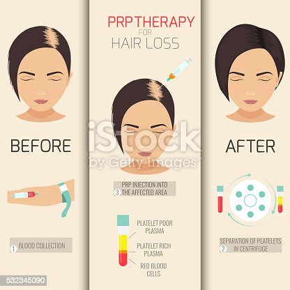 Prp Therapy For Hair Loss Stock Vector Art Amp More Images