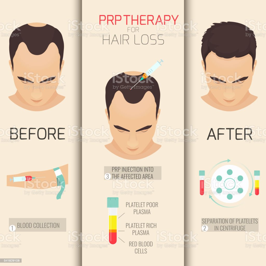 PRP therapy for hair loss vector art illustration