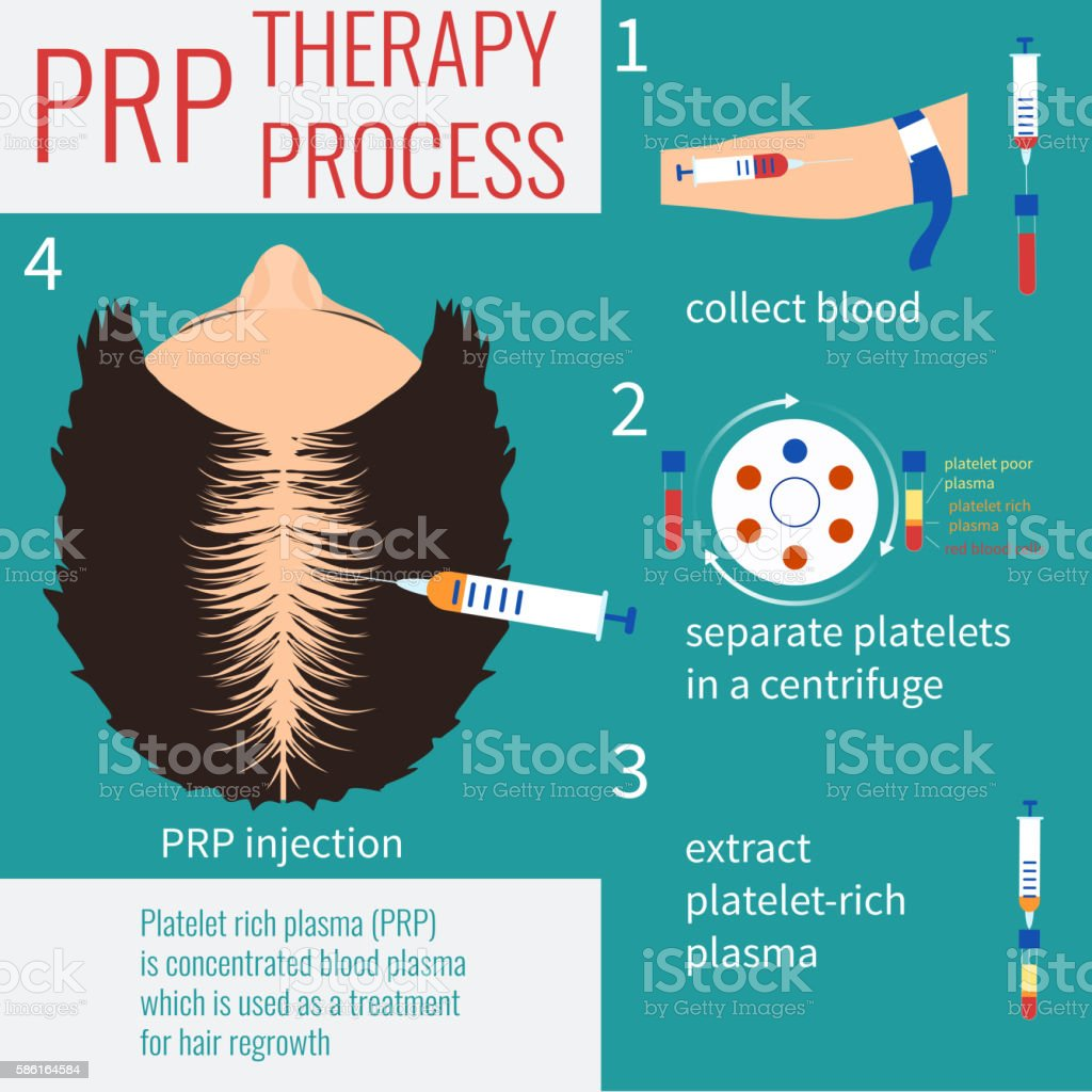 PRP therapy for women vector art illustration