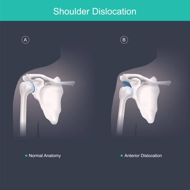 This is use for explain and compare when the head of the humerus is out of the shoulder joint include shoulder pain. Anatomy body human illustration. vector art illustration