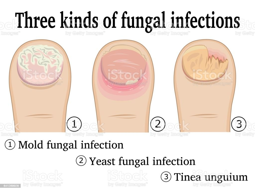 Three kinds of fungal infections vector art illustration