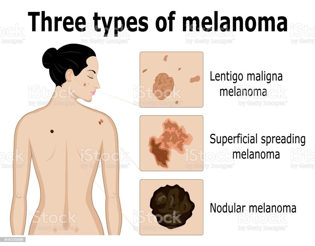 Trois types de mélanome - Illustration vectorielle