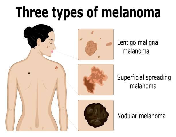 stockillustraties, clipart, cartoons en iconen met drie soorten melanoom - menselijke huid