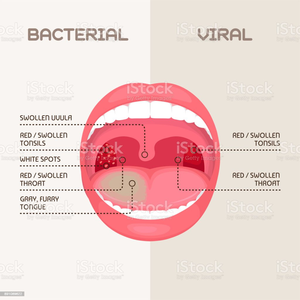 Throat Infection Tonsils Inflammation Stock Vector Art & More Images ...