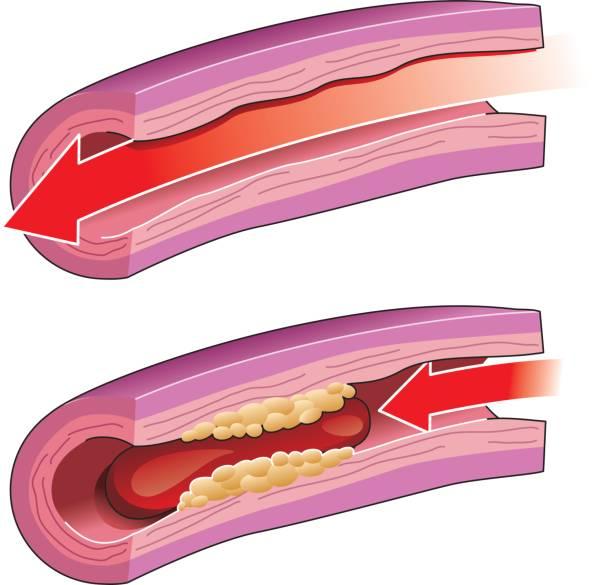 ilustrações, clipart, desenhos animados e ícones de de trombose - colesterol