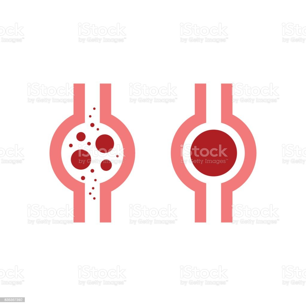 Thrombus vector art illustration