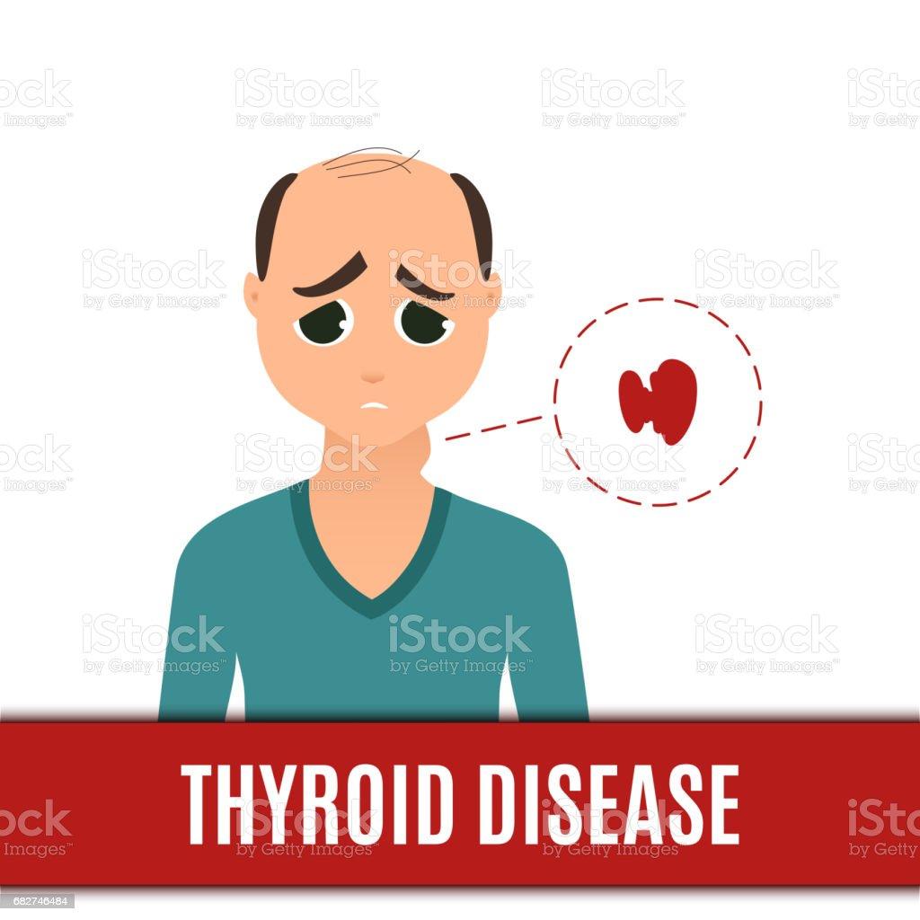 Thyroid disorder in men vector art illustration