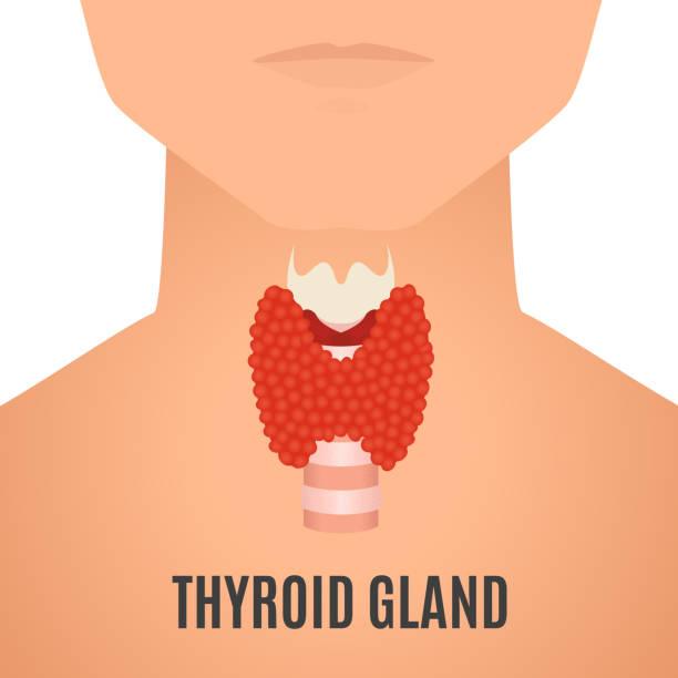 Nguồn ảnh chất lượng cao với 610 tấm về bệnh bướu cổ, mời bạn tham khảo và download