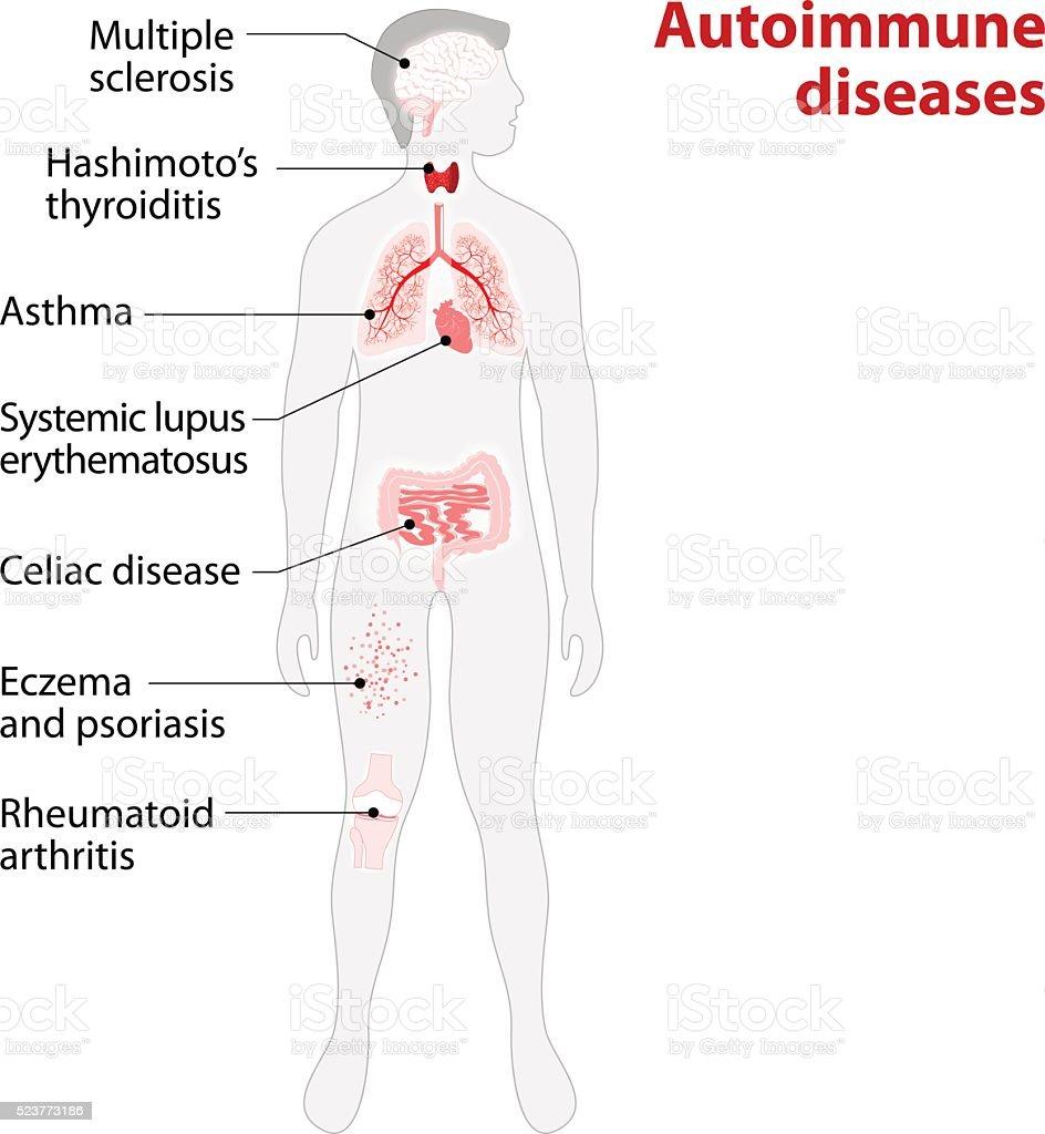 Das Gewebe Des Menschlichen Körper Durch Autoimmune Attack Stock ...