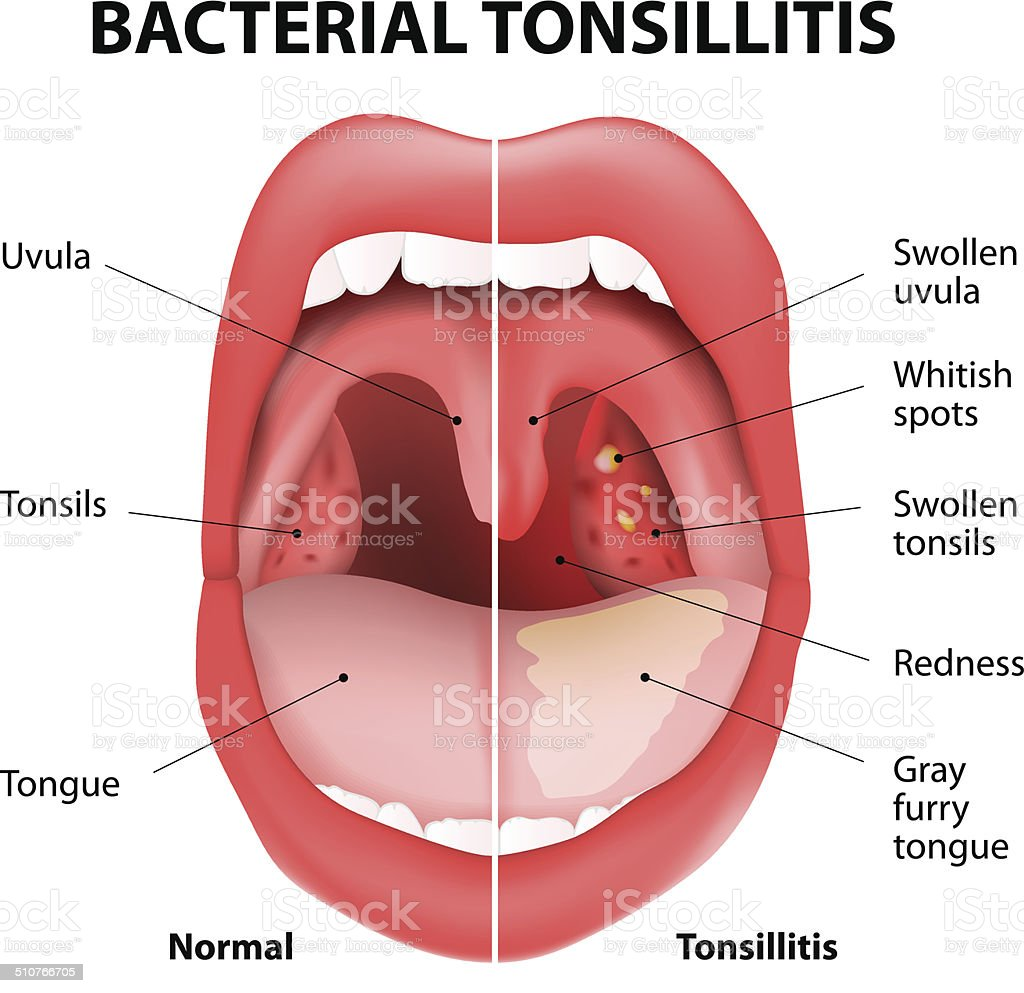 Tonsillitis bacterial vector art illustration