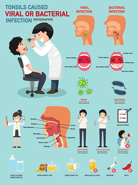illustrazioni stock, clip art, cartoni animati e icone di tendenza di tonsille causato infezione virale o batterica - lingua umana