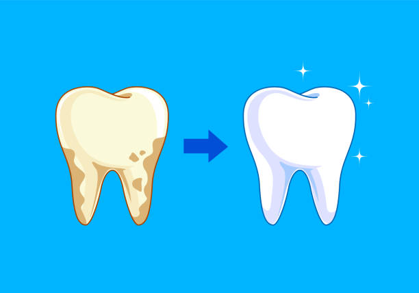 ilustrações de stock, clip art, desenhos animados e ícones de tooth before and after. yellow becomes white, - boca suja